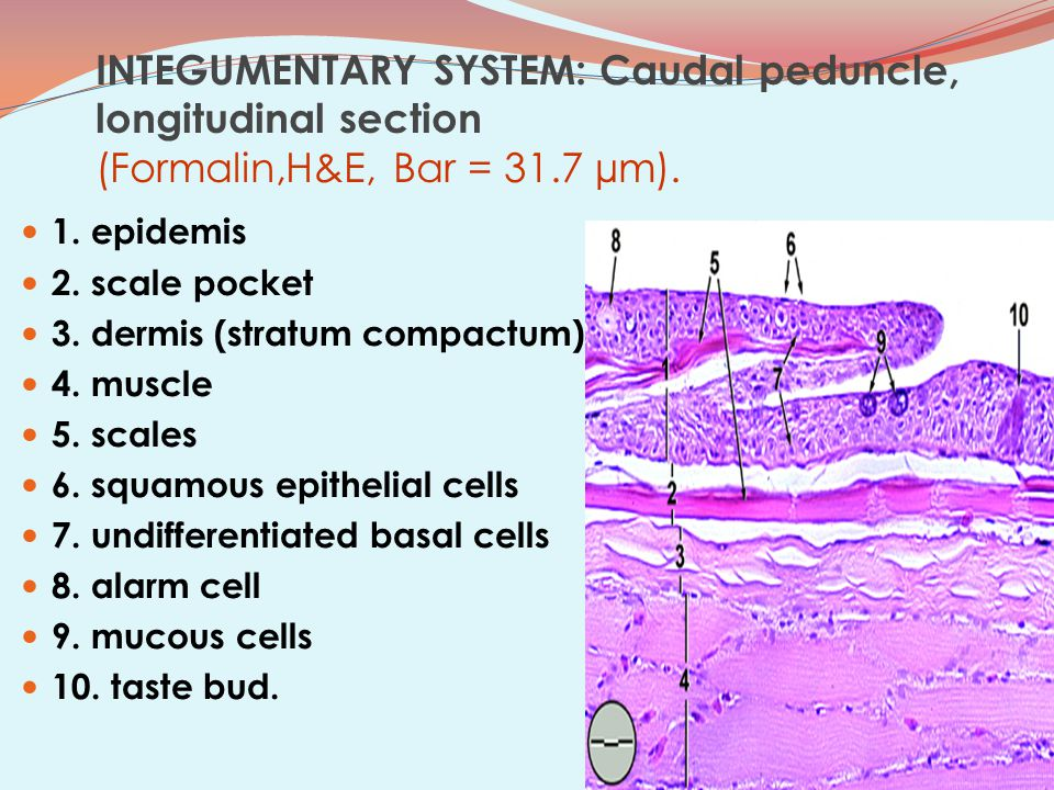 INTEGUMENTARY SYSTEM: Caudal peduncle, longitudinal section (Formalin,H&E, Bar = 31.7 µm).