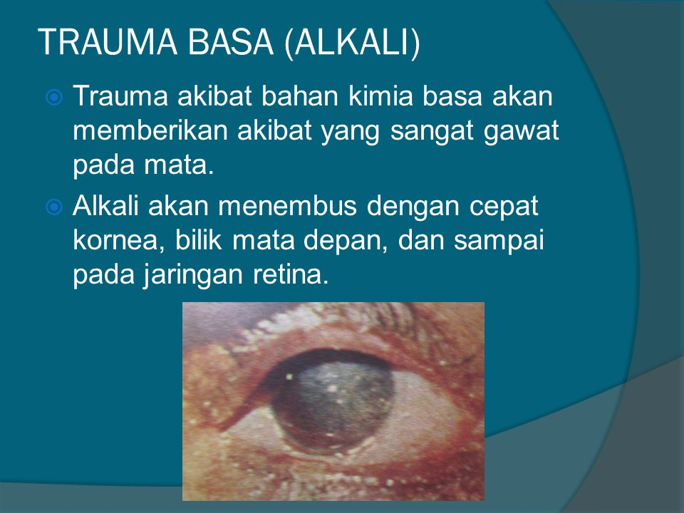 TRAUMA BASA (ALKALI) Trauma akibat bahan kimia basa akan memberikan akibat yang sangat gawat pada mata.