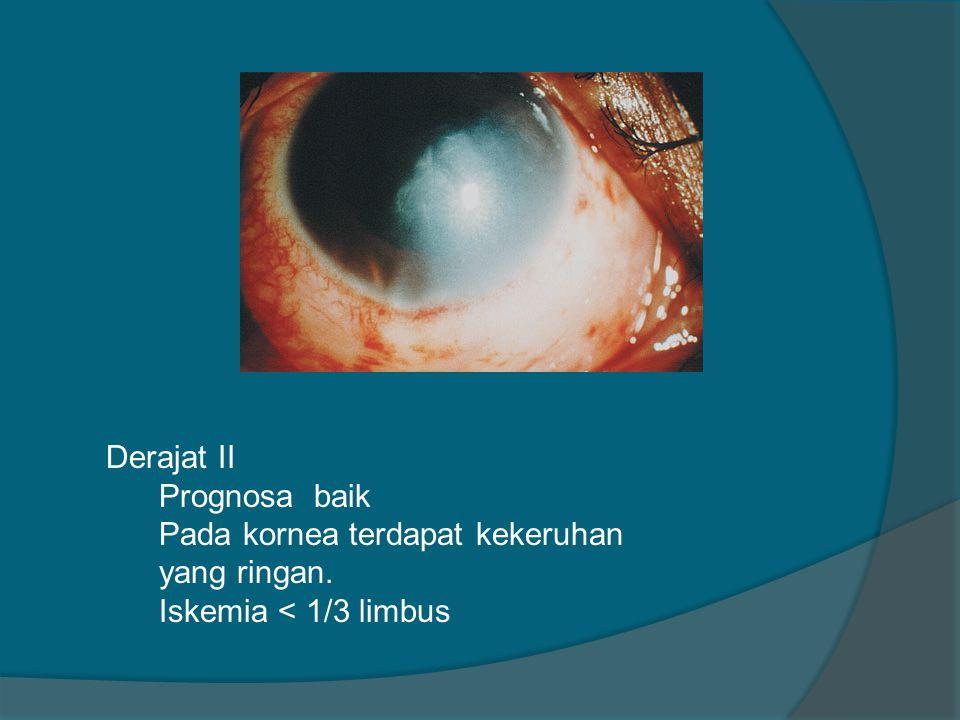 Derajat II Prognosa baik Pada kornea terdapat kekeruhan yang ringan. Iskemia < 1/3 limbus