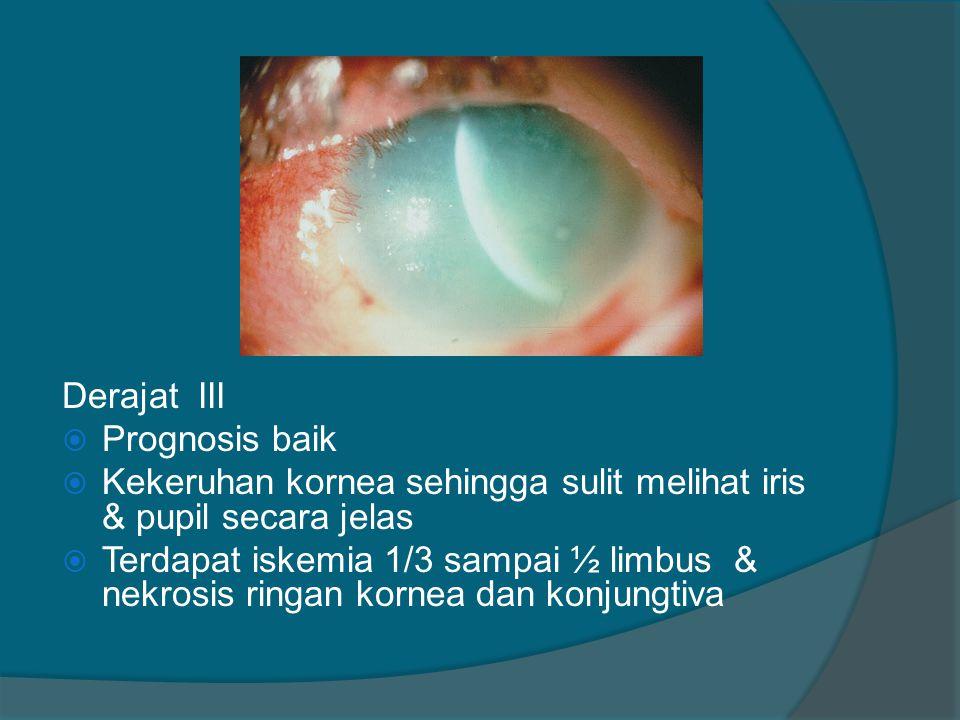 Derajat III Prognosis baik. Kekeruhan kornea sehingga sulit melihat iris & pupil secara jelas.
