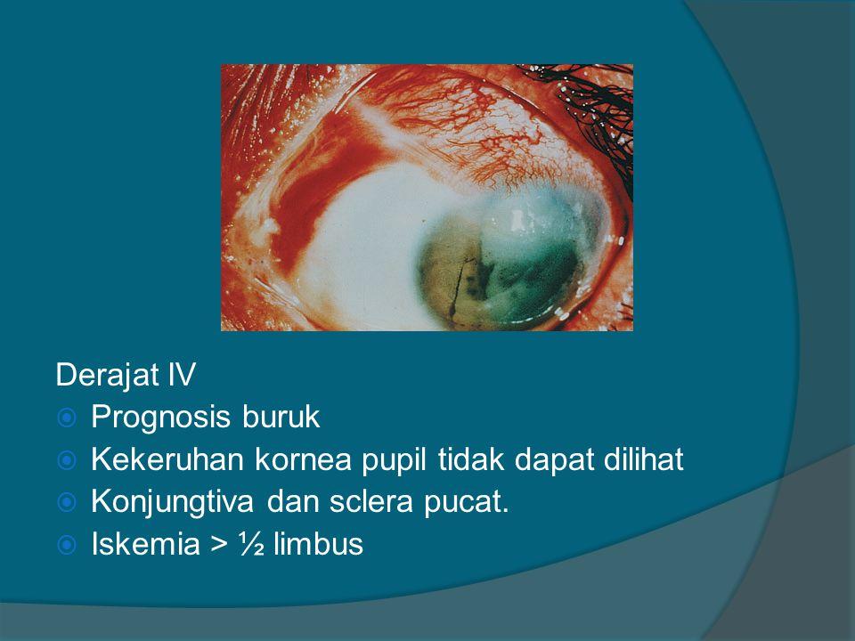 Derajat IV Prognosis buruk. Kekeruhan kornea pupil tidak dapat dilihat. Konjungtiva dan sclera pucat.