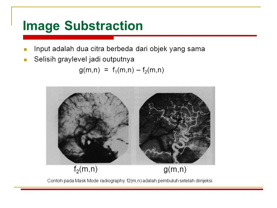 Image Substraction f2(m,n) g(m,n)