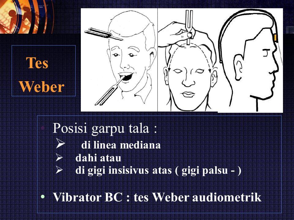 Tes Weber • Posisi garpu tala :  di linea mediana