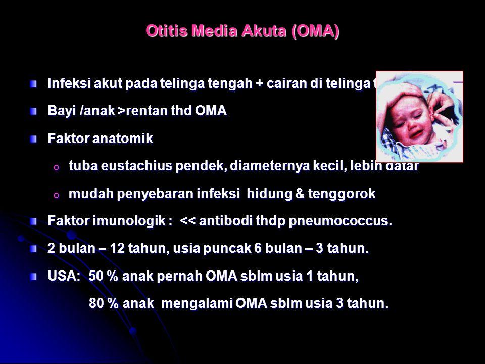 Otitis Media Akuta (OMA)