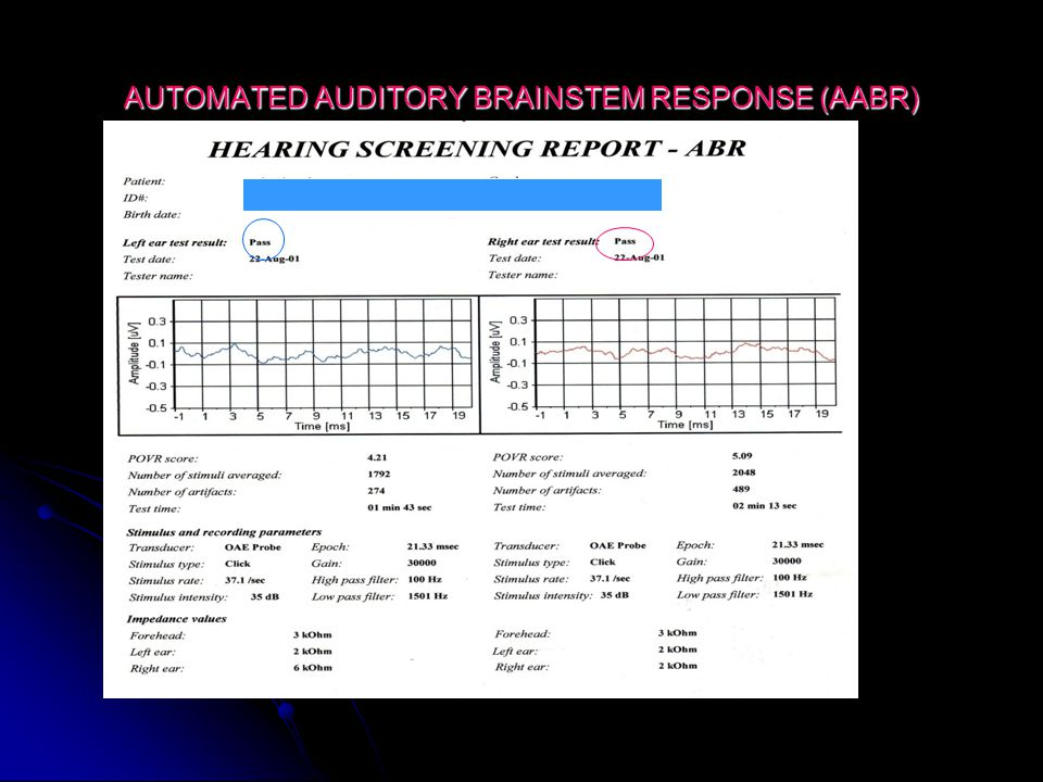 AUTOMATED AUDITORY BRAINSTEM RESPONSE (AABR)