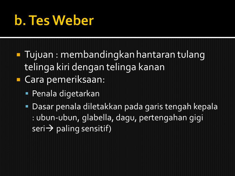 b. Tes Weber Tujuan : membandingkan hantaran tulang telinga kiri dengan telinga kanan. Cara pemeriksaan: