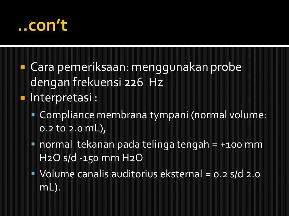..con't Cara pemeriksaan: menggunakan probe dengan frekuensi 226 Hz