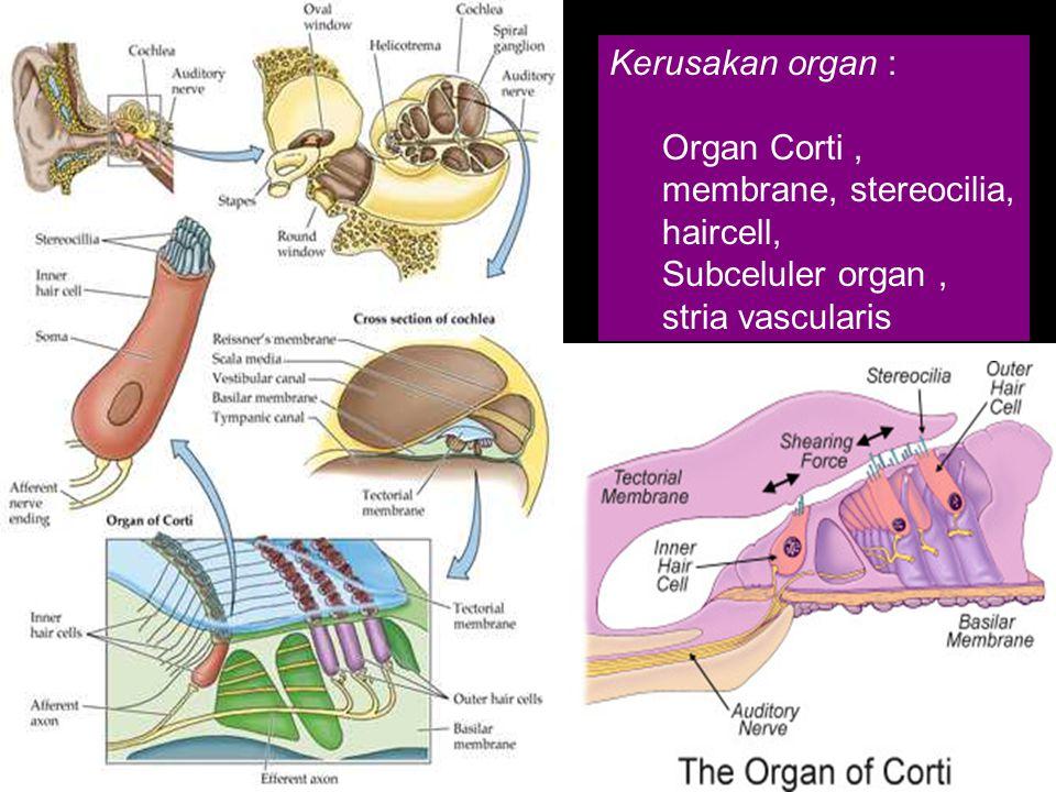 Kerusakan organ : Organ Corti , membrane, stereocilia, haircell, Subceluler organ , stria vascularis.
