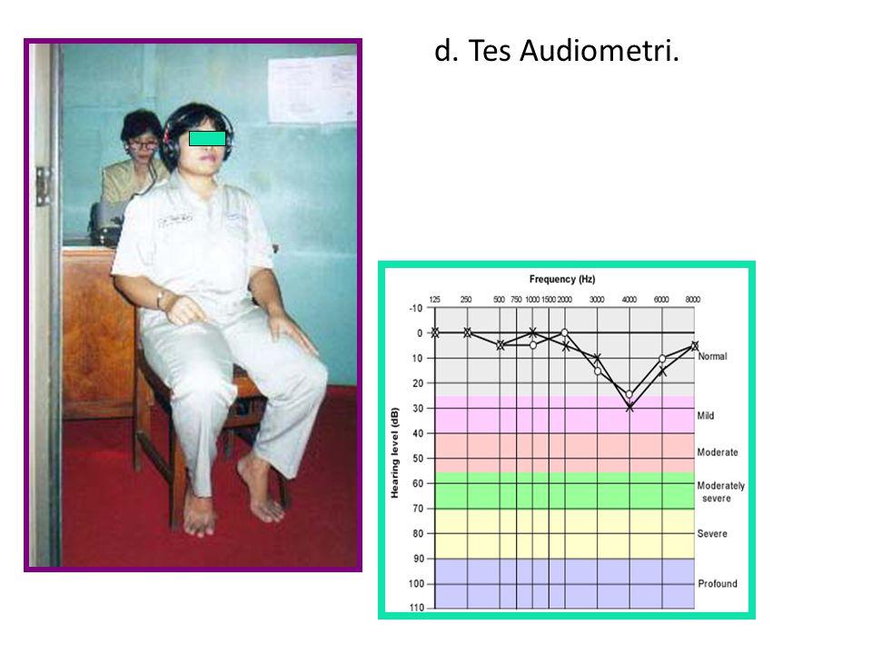d. Tes Audiometri.