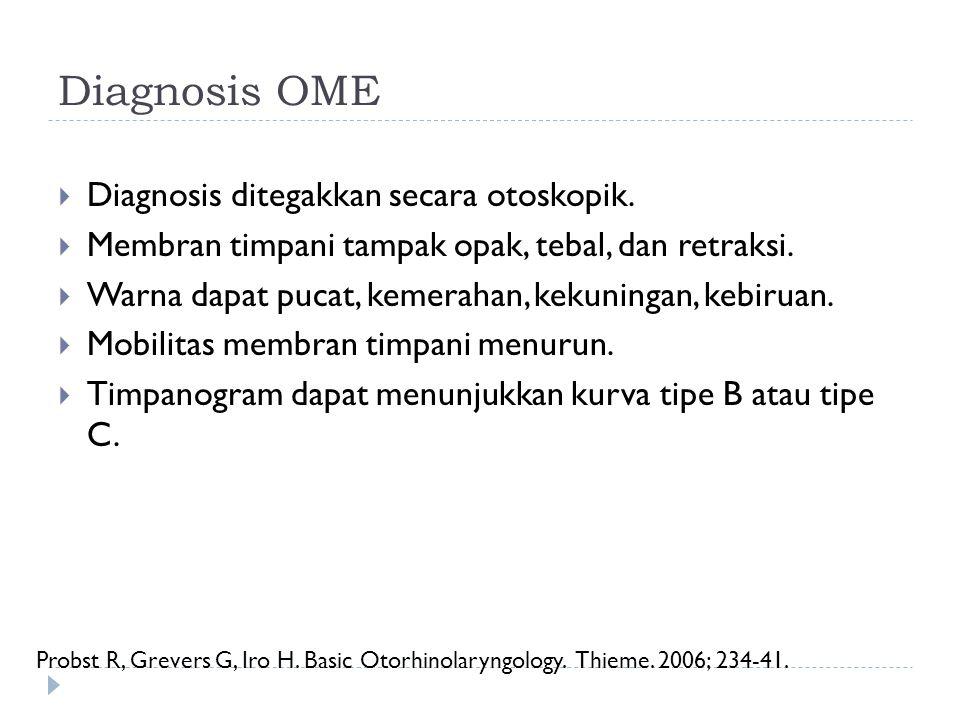 Diagnosis OME Diagnosis ditegakkan secara otoskopik.