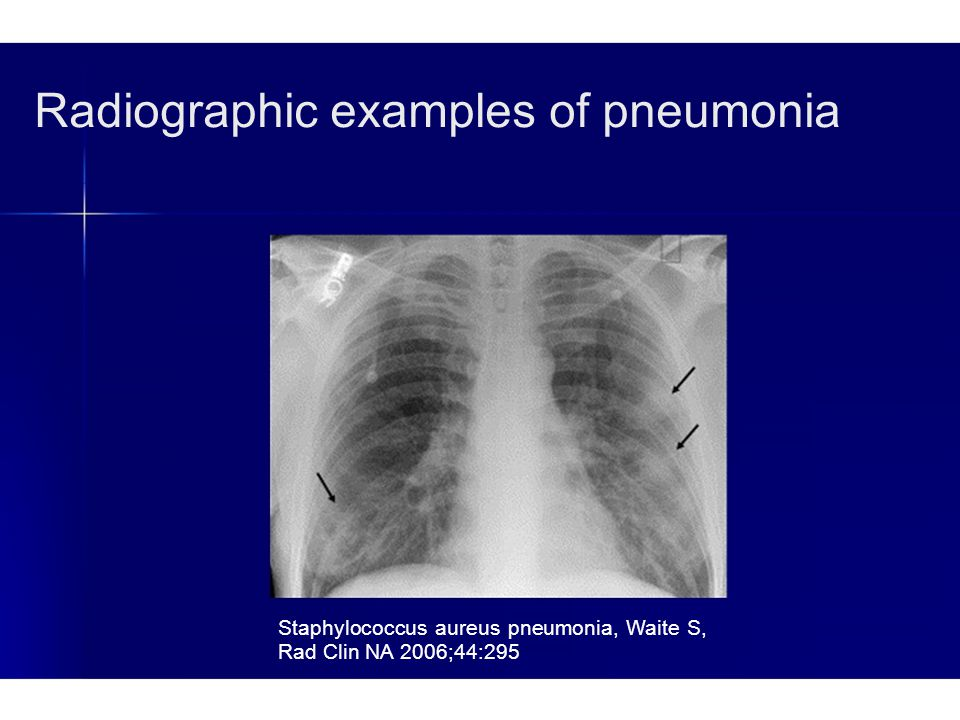Radiographic examples of pneumonia