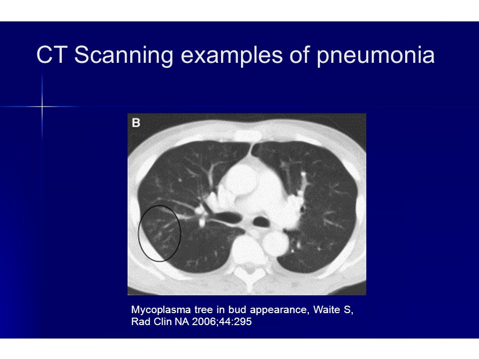 CT Scanning examples of pneumonia