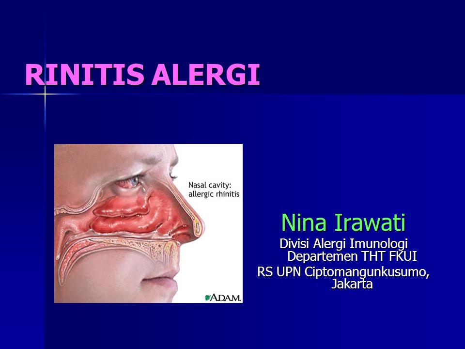 RINITIS ALERGI Nina Irawati