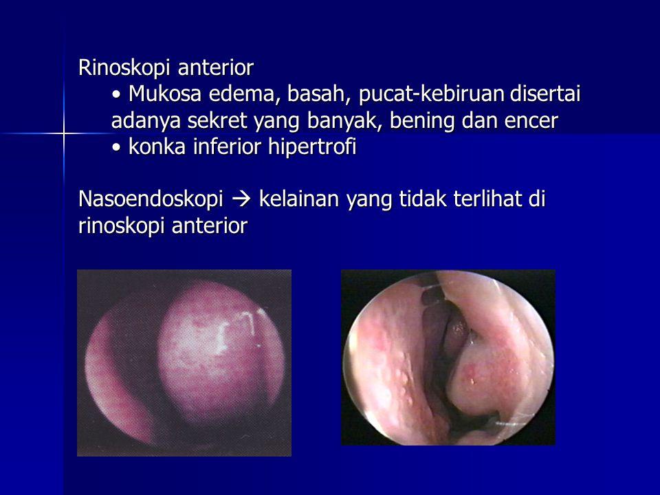Rinoskopi anterior Mukosa edema, basah, pucat-kebiruan disertai adanya sekret yang banyak, bening dan encer.
