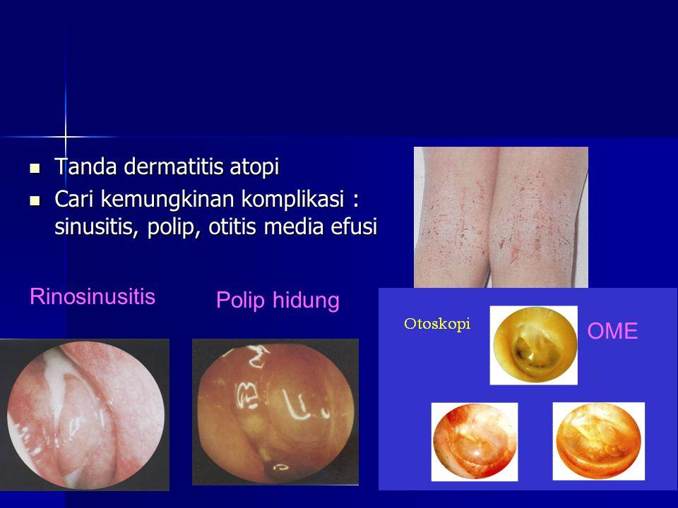 Tanda dermatitis atopi