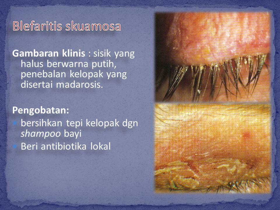 Blefaritis skuamosa Gambaran klinis : sisik yang halus berwarna putih, penebalan kelopak yang disertai madarosis.