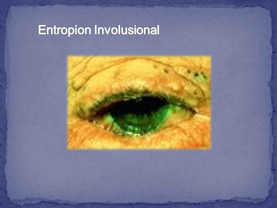 Entropion Involusional