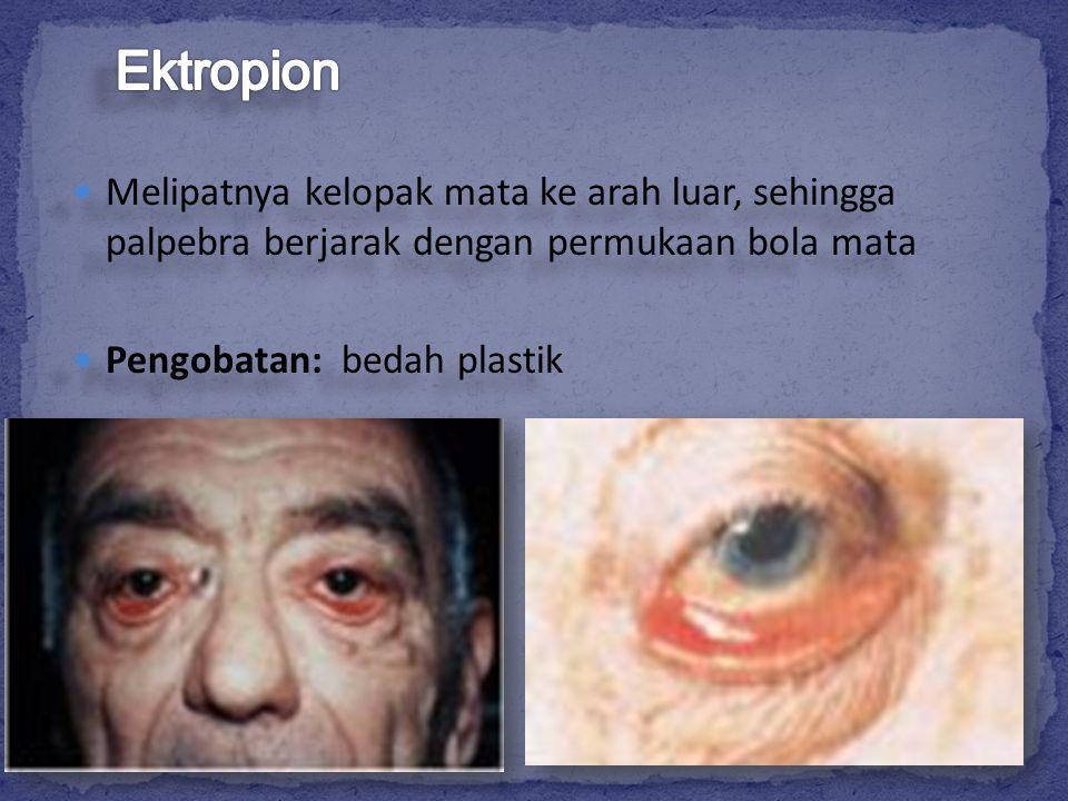 Ektropion Melipatnya kelopak mata ke arah luar, sehingga palpebra berjarak dengan permukaan bola mata.