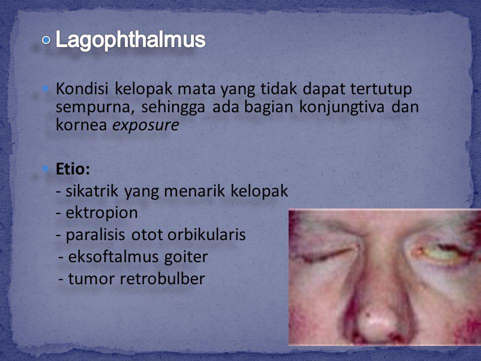 Lagophthalmus Kondisi kelopak mata yang tidak dapat tertutup sempurna, sehingga ada bagian konjungtiva dan kornea exposure.