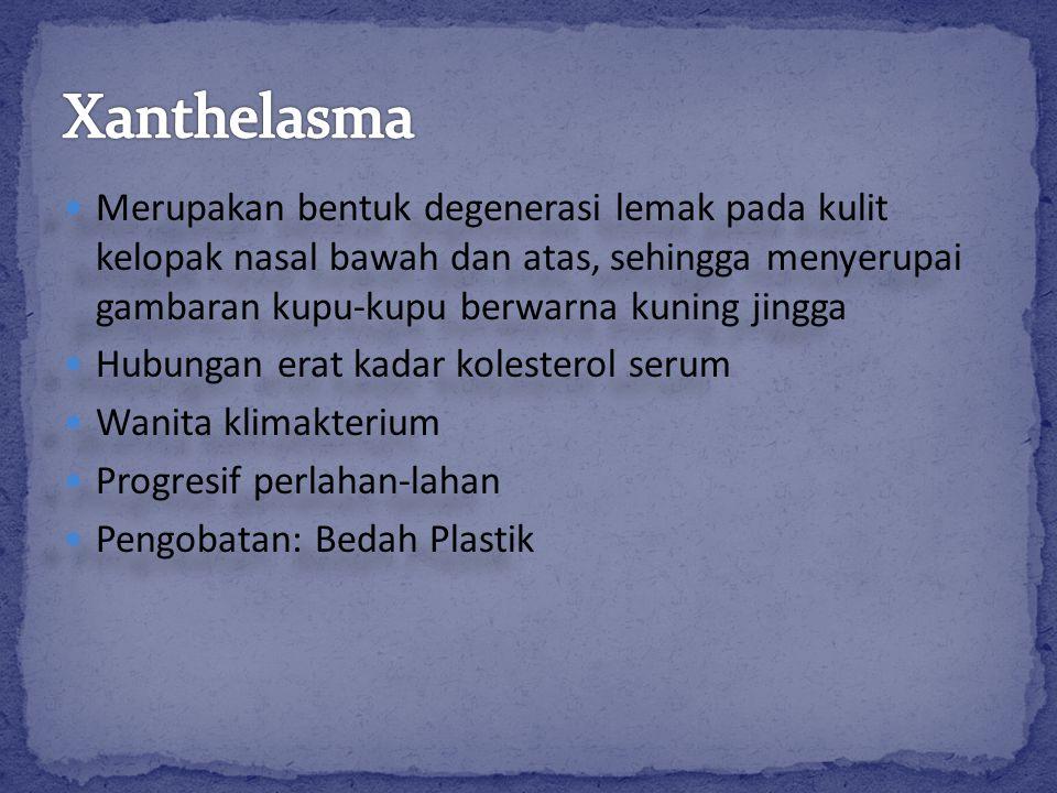 Xanthelasma