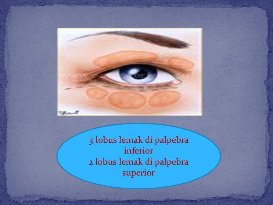 3 lobus lemak di palpebra inferior 2 lobus lemak di palpebra superior