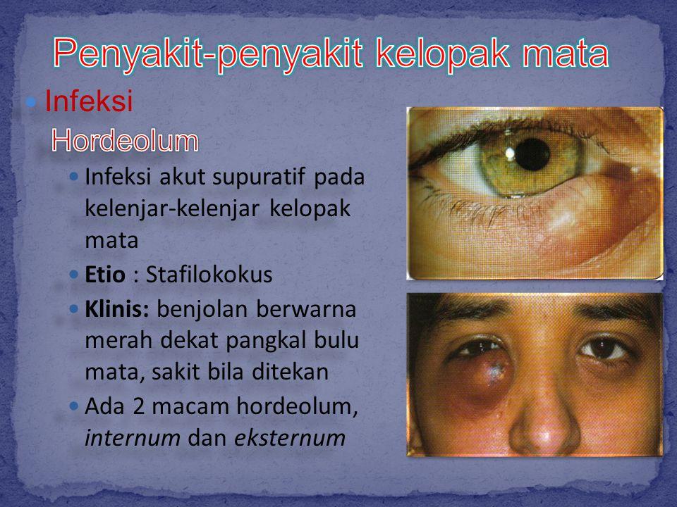 Penyakit-penyakit kelopak mata