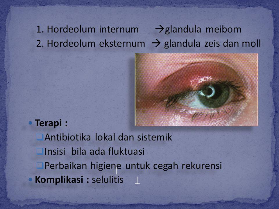 1. Hordeolum internum glandula meibom