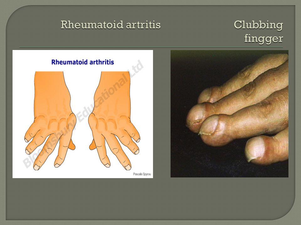 Rheumatoid artritis Clubbing fingger