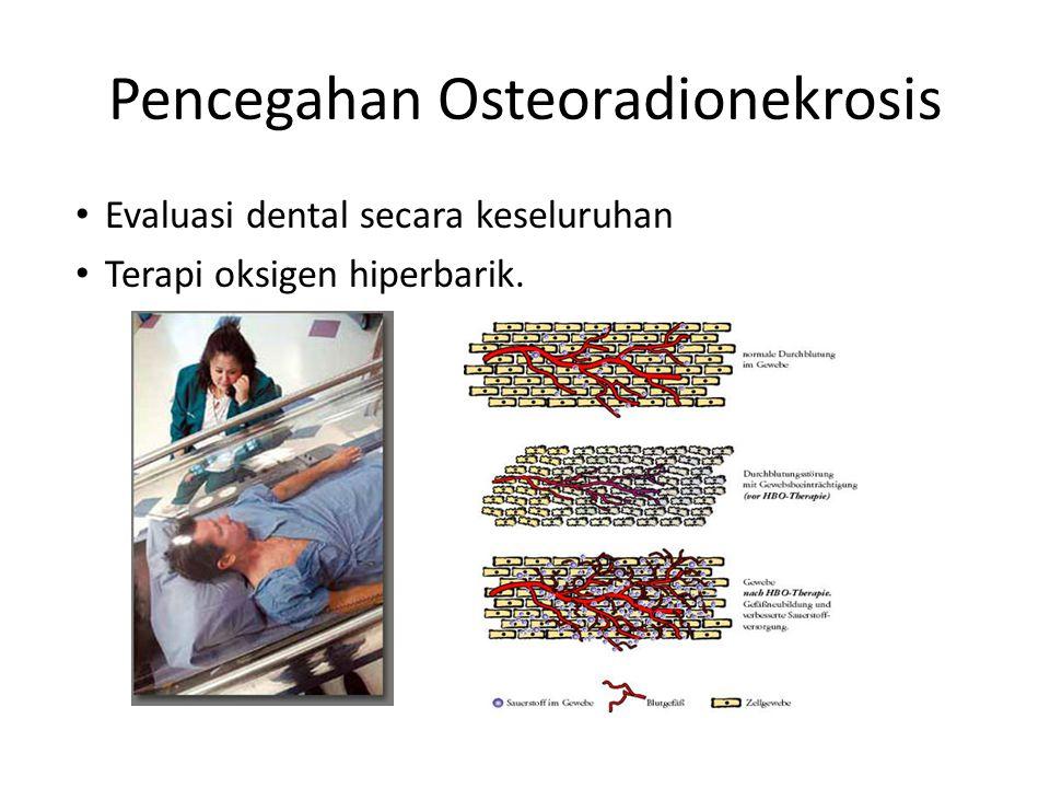Pencegahan Osteoradionekrosis