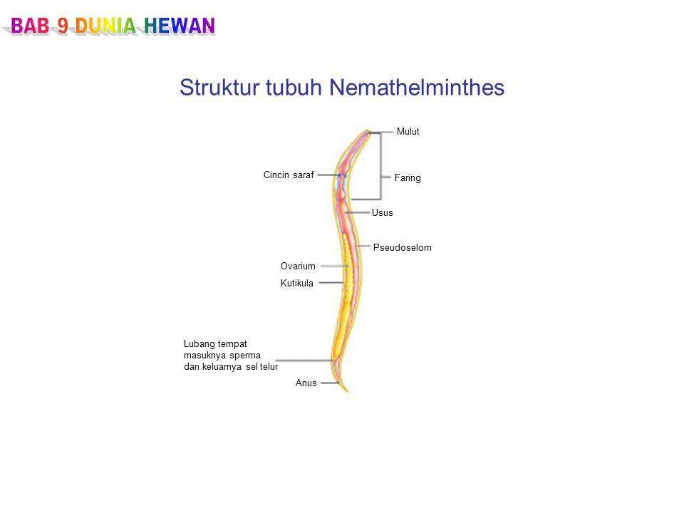 Struktur tubuh Nemathelminthes