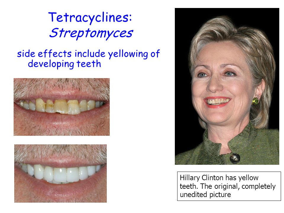 Tetracyclines: Streptomyces