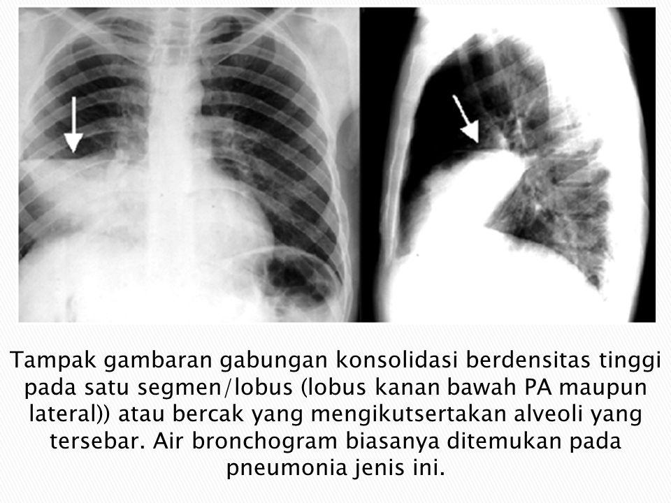 Tampak gambaran gabungan konsolidasi berdensitas tinggi pada satu segmen/lobus (lobus kanan bawah PA maupun lateral)) atau bercak yang mengikutsertakan alveoli yang tersebar.