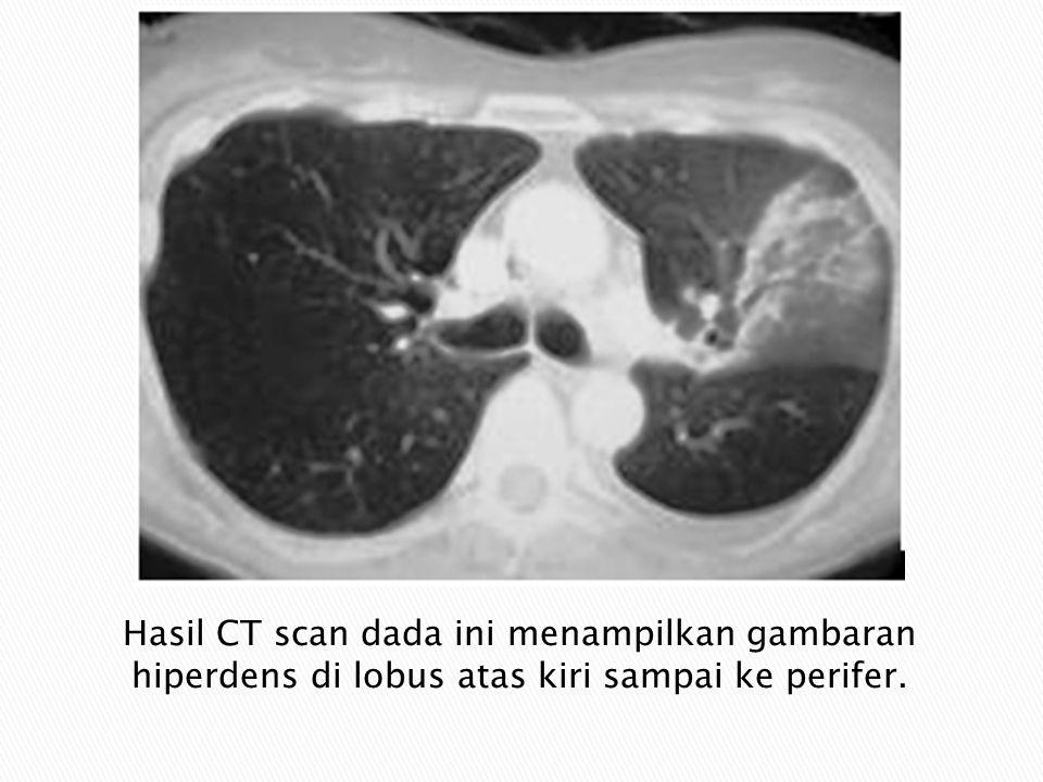Hasil CT scan dada ini menampilkan gambaran hiperdens di lobus atas kiri sampai ke perifer.