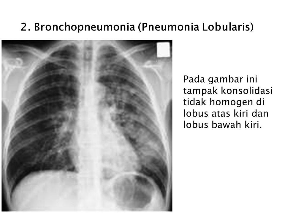 2. Bronchopneumonia (Pneumonia Lobularis)