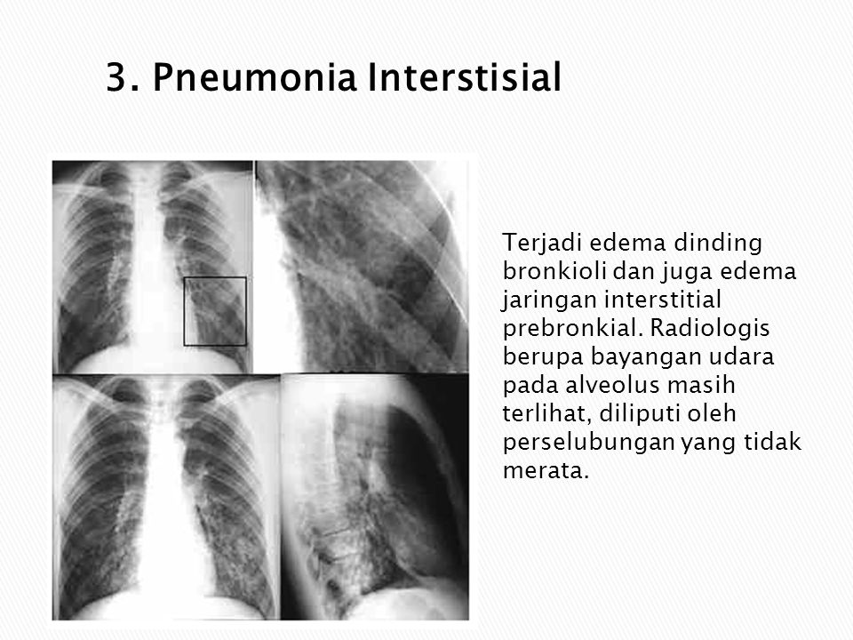 3. Pneumonia Interstisial