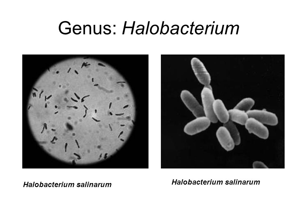 halobacterium lab report Pseudomonas aeruginosa pseudomonas aeruginosa is a gram-negative, rod-shaped, motile organism (polar flagella) which characteristically produce water-soluble pigments which diffuse through the medium.