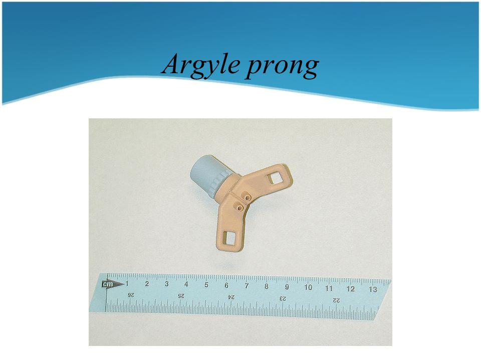Argyle prong