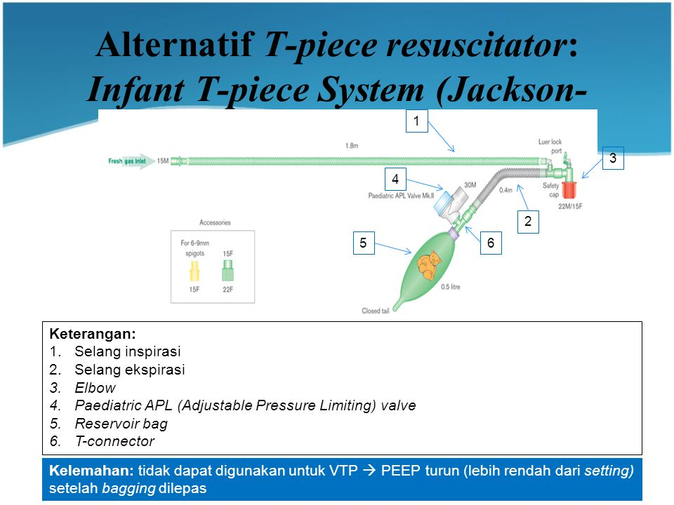 Alternatif T-piece resuscitator: Infant T-piece System (Jackson-Rees)