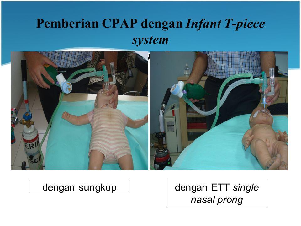 Pemberian CPAP dengan Infant T-piece system (Jackson-Rees)