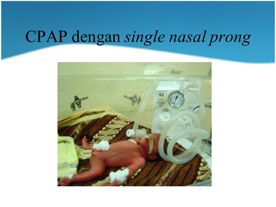 CPAP dengan single nasal prong