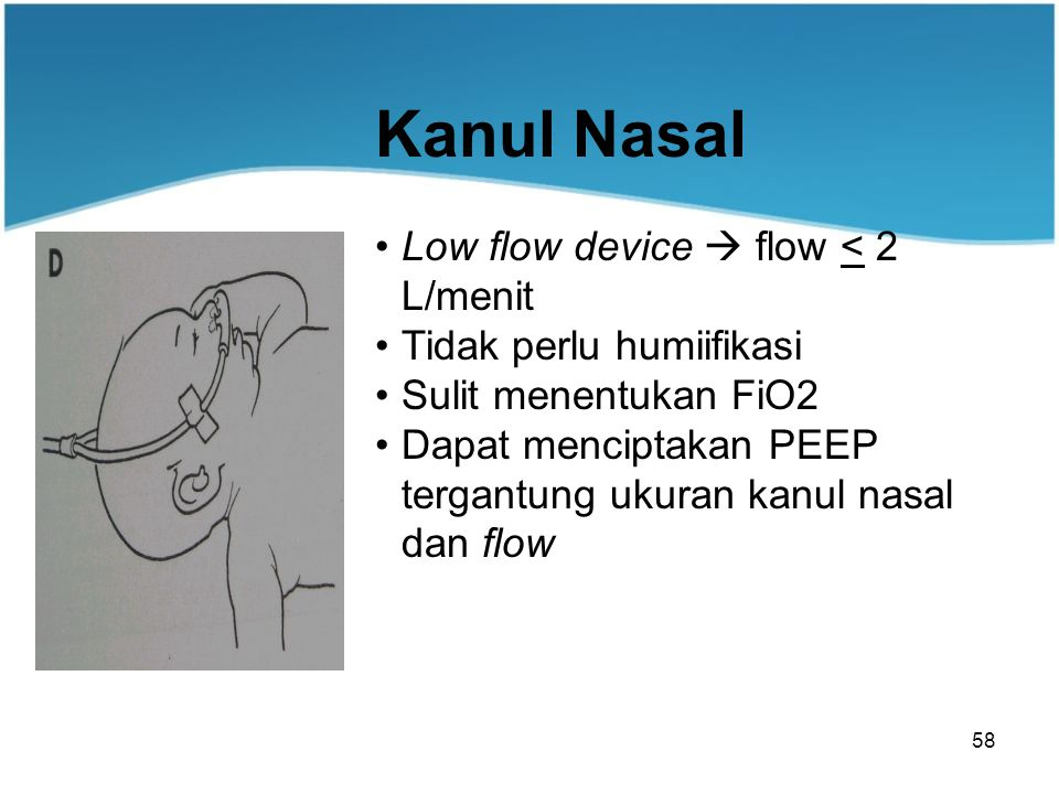 Kanul Nasal Low flow device  flow < 2 L/menit