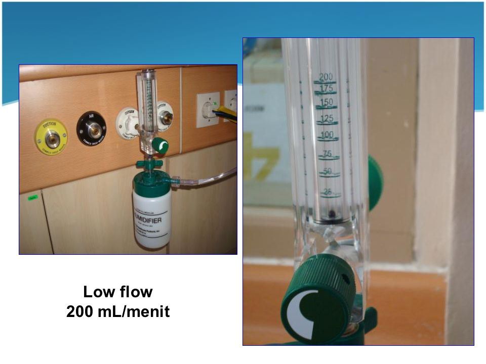 Low flow 200 mL/menit 200 mL /menit (low flow)