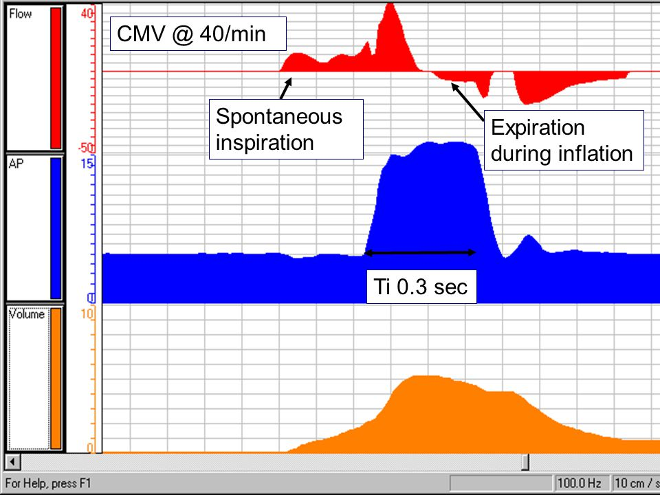 CMV @ 40/min Spontaneous inspiration Expiration during inflation Ti 0.3 sec