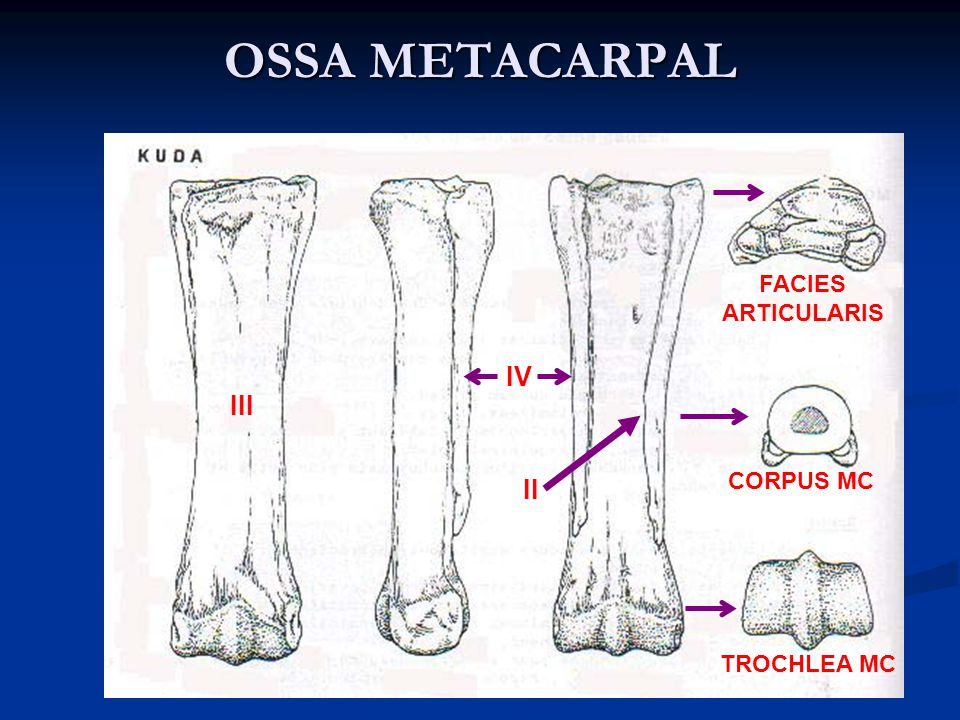 OSSA METACARPAL FACIES ARTICULARIS IV III CORPUS MC II TROCHLEA MC