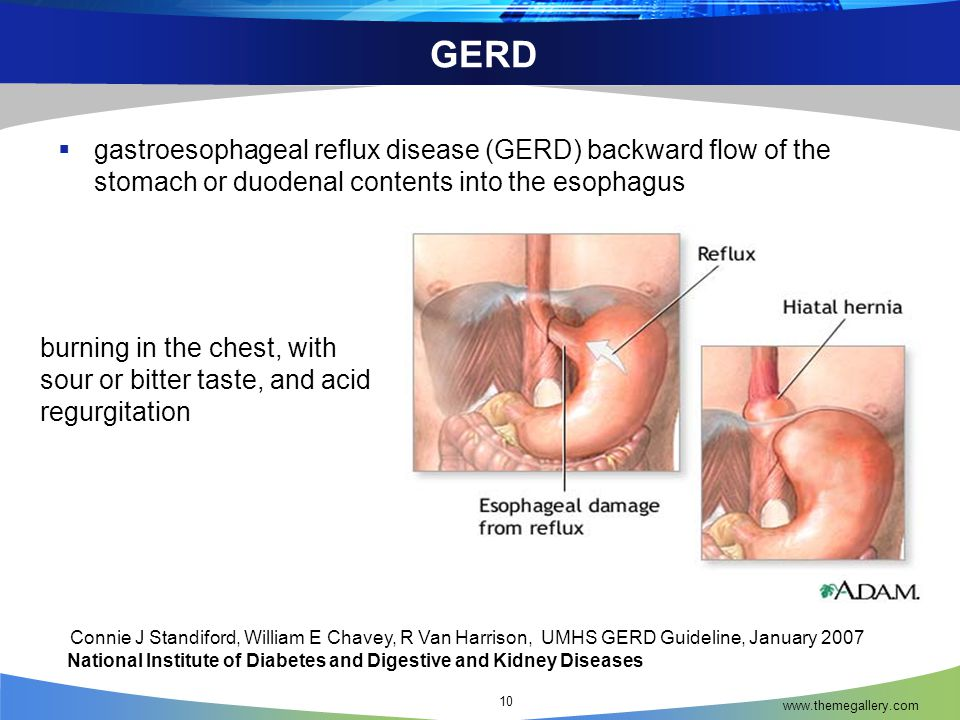 GERD gastroesophageal reflux disease (GERD) backward flow of the stomach or duodenal contents into the esophagus.
