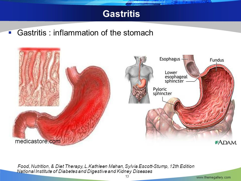 Gastritis Gastritis : inflammation of the stomach medicastore.com