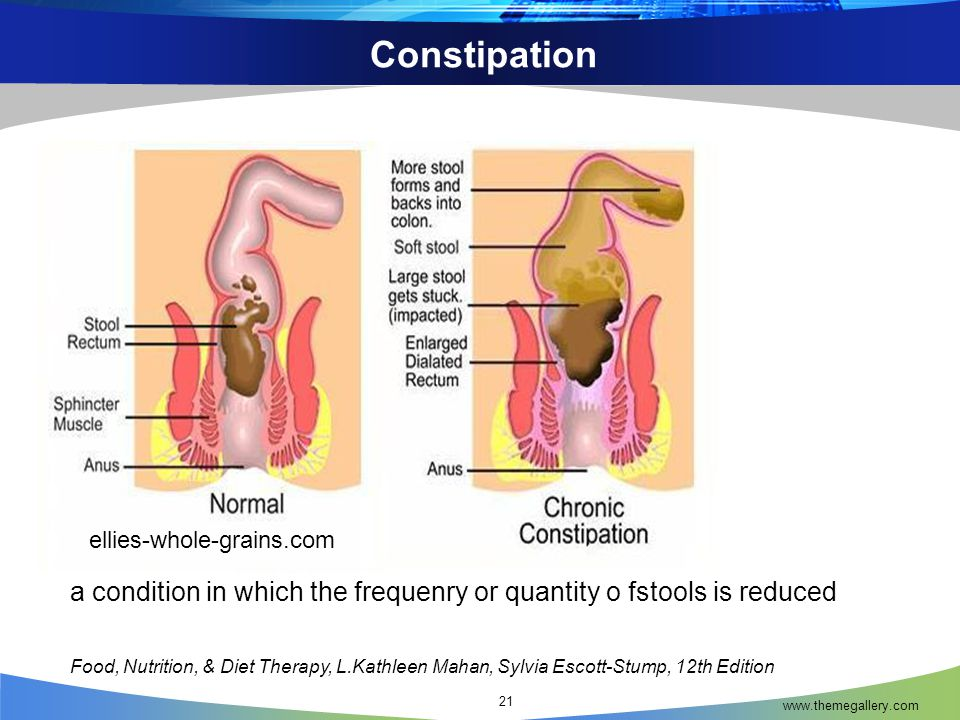Constipation ellies-whole-grains.com. a condition in which the frequenry or quantity o fstools is reduced.
