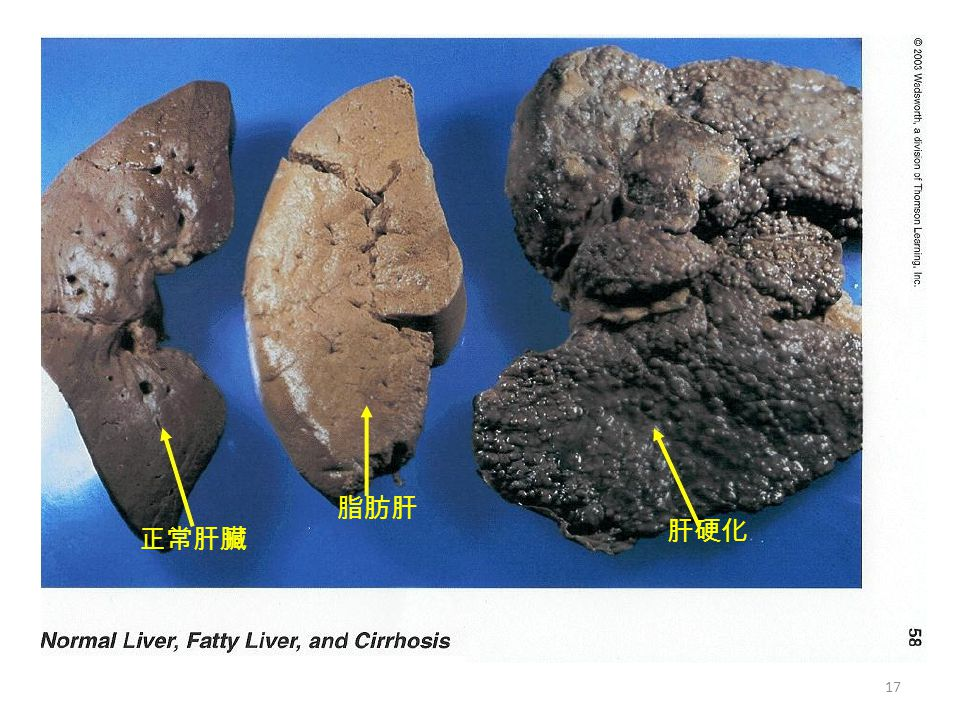 脂肪肝 肝硬化 正常肝臟 17