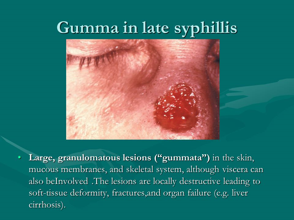 Gumma in late syphillis