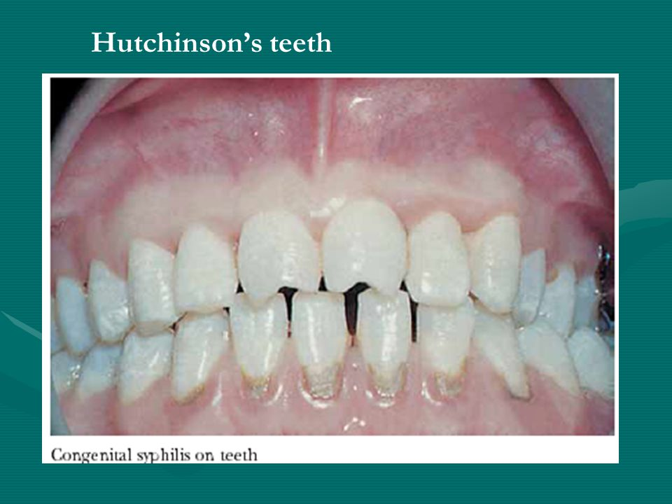 Hutchinson's teeth